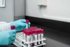 Workers From Some EU Countries Must Now Provide Negative Covid Tests